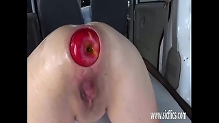 Extraordinary ass-fuck handballing and XXL apple injections